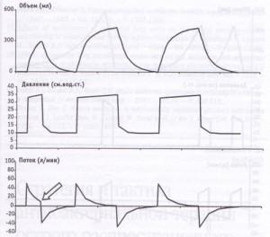 Кривая потока при вентиляции с контролем по объему