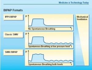 Начальные параметры BIPAP