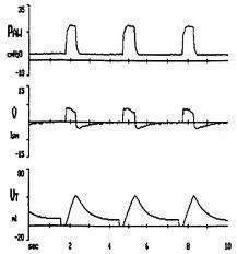 Основные причины увеличения сопротивления дыхательных путей