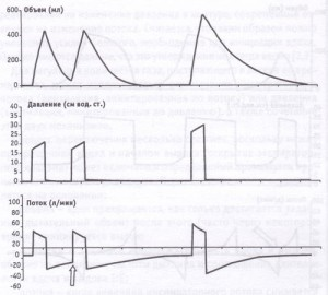 PCV и параметры вентиляции