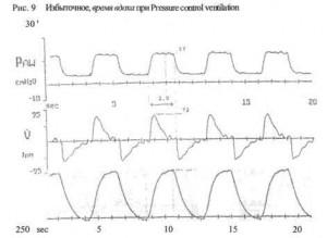 PCV — вентиляция с управляемым давлением  (Pressure Control Ventilation)