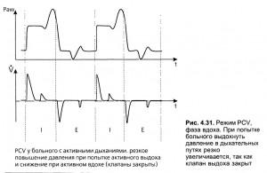 Проведение вентиляции с управляемым давлением