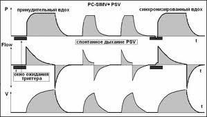 Режим P-SIMV: резюме