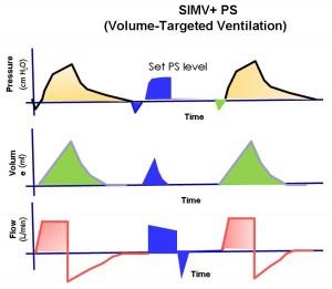 Режим SIMV: резюме