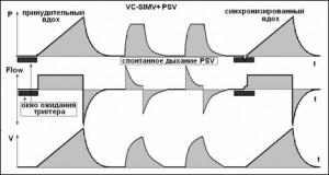 Сохранение активных спонтанных дыхательных движений при SIMV