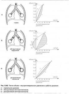 Сопротивление эндотрахеальной трубки