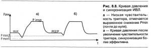 Среднее давление в дыхательных путях Pmean