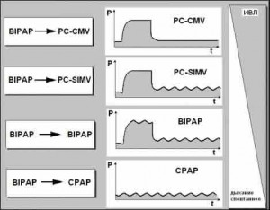 Место принципа двухфазной вентиляции BIPAP