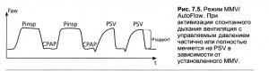 Основные особенности и преимущества вспомогательного режима FSV (TLDF)